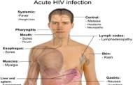 اختراع دانشمندان سوئدی برای سنجش آلودگی به ویروس اچ آی وی