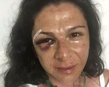 Vinculan a proceso al agresor de Ana Gabriela Guevara tras primer careo