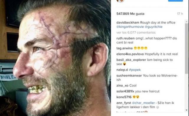 Beckham impacta con cicatriz en Instagram