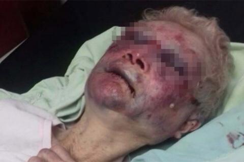 """Presunta agresión a abuelita; """"se cayó"""" dice la encargada"""