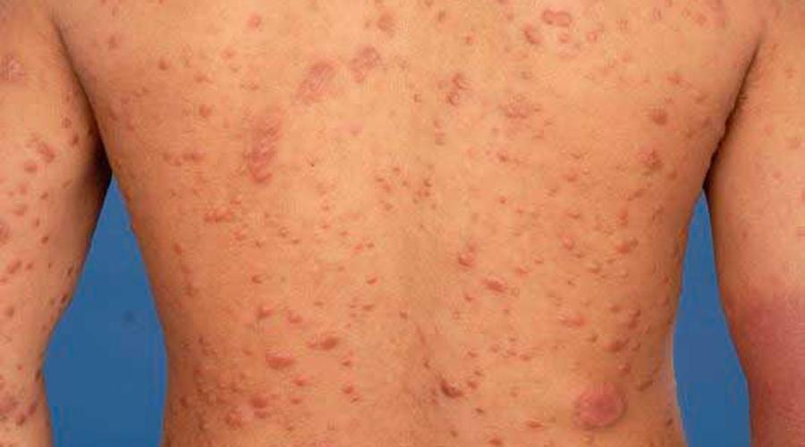 Alerta en 18 estados, reportan casos de lepra en México