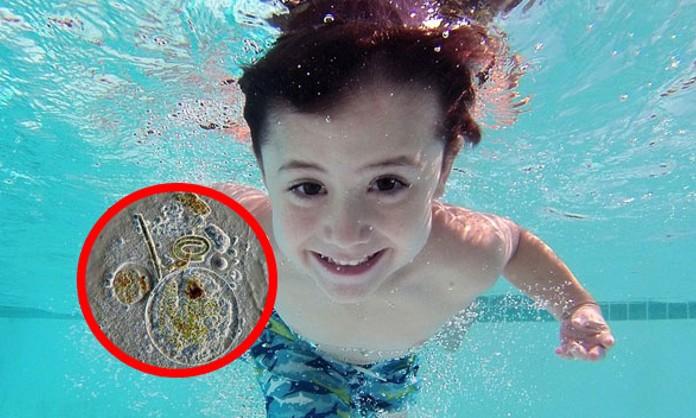"""Muere niño de 7 años tras infectarse una extraña y mortífera ameba """"comecerebros"""" al nadar en un lago en EE.UU."""