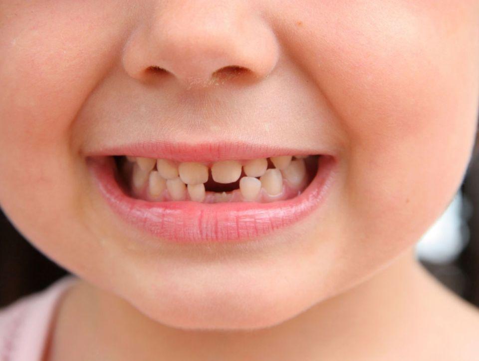 dents enfant