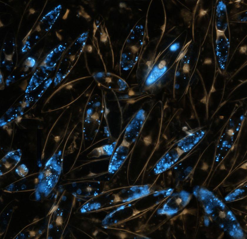 Martin Dohrn - Dinoflagellates