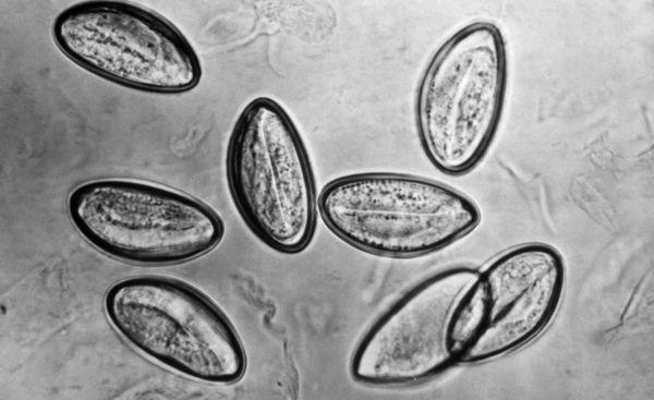 Oxiuri-simptome-si-tratament-contra-parazitilor-intestinali