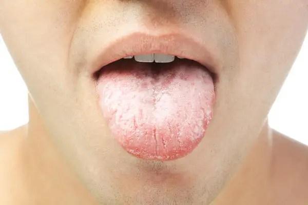 remedii-naturiste-pentru-aftele-bucale