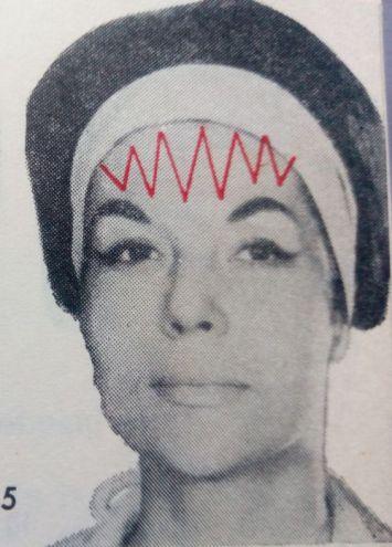 5-masaj-frunte-zigzag