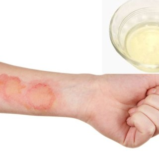 4 ingrediente care te ajuta in caz de arsura prin oparire