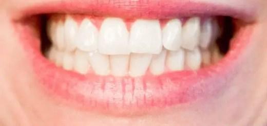 dureri-de-dinti