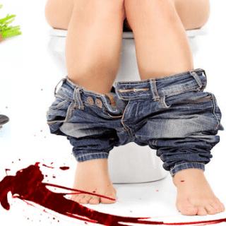 Leacuri rusesti contra hemoroizilor