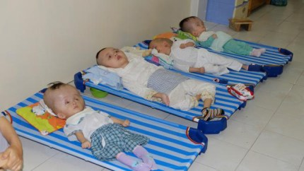 These Vietnamese children all have hydrocephalus: from left, Huu Loc, 3, Ti Ni, 12, Tinh, 4, and Tu, 5. – Photo: Ash Anand, Newsmodo