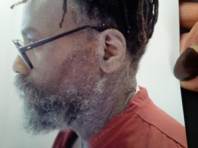 This closeup of the effects of Hep-C on Mumia's face was taken on April 25, 2015.