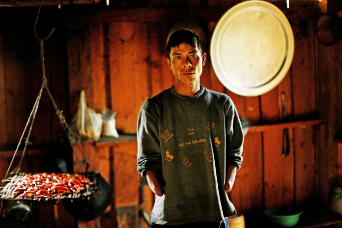Man-lost-hands-2011-in-explosion-of-unexploded-U.S.-ordnance-from-Vietnam-War-by-Jorge-Silva-Reuters, What lessons have we learned from the war in Vietnam?, World News & Views
