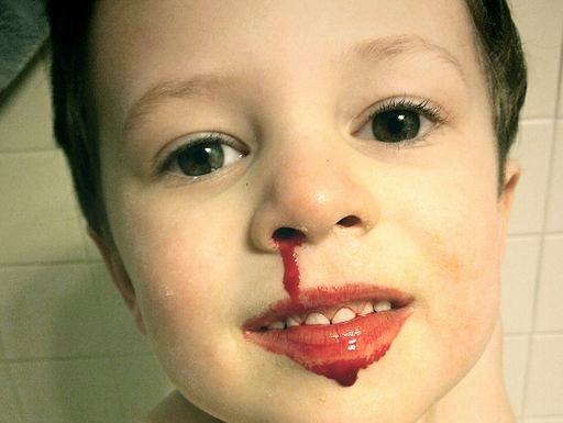 Your kids nosebleed: What you need to know