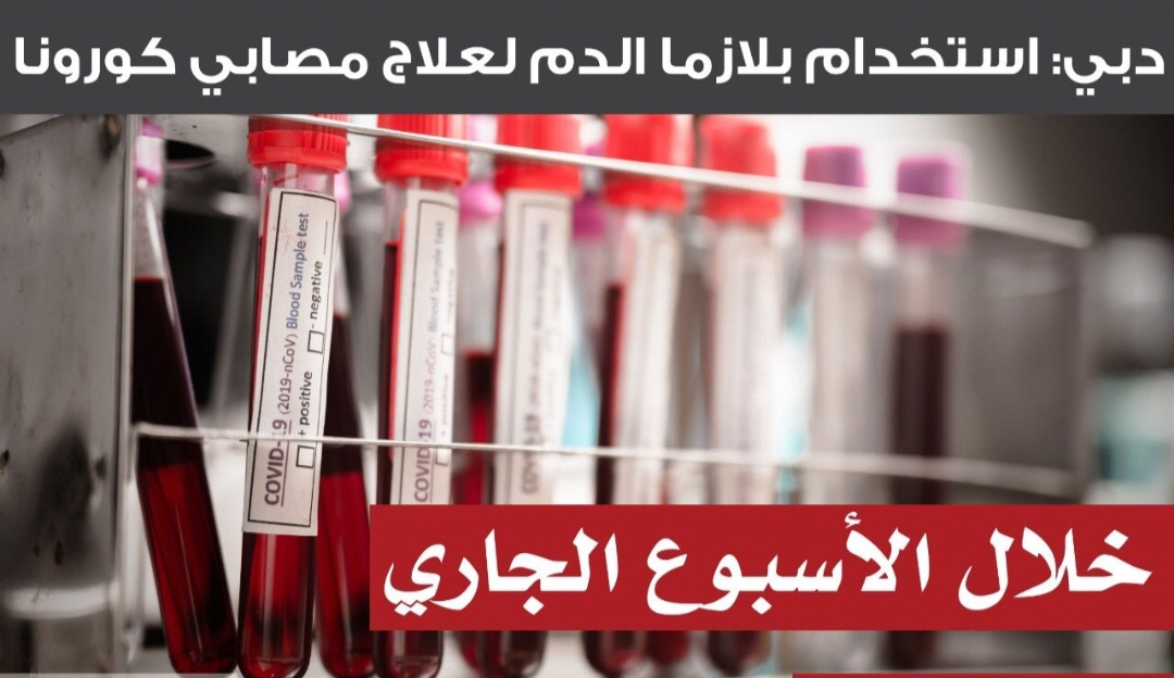 عربيا ً:الإمارات تشرع باستخدام بلازما الدم للمرضى المتعافين من كورونا و(1520) إصابة مؤكدة.. اليوم