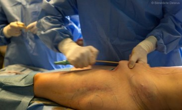 Liposuction in France