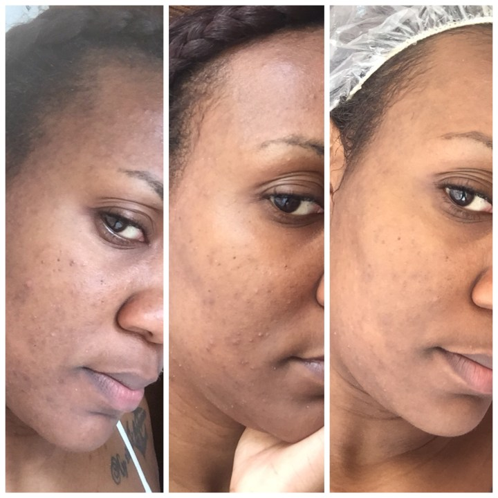 Skincare: Road To Recovery