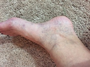Left ankle four months after two treatments