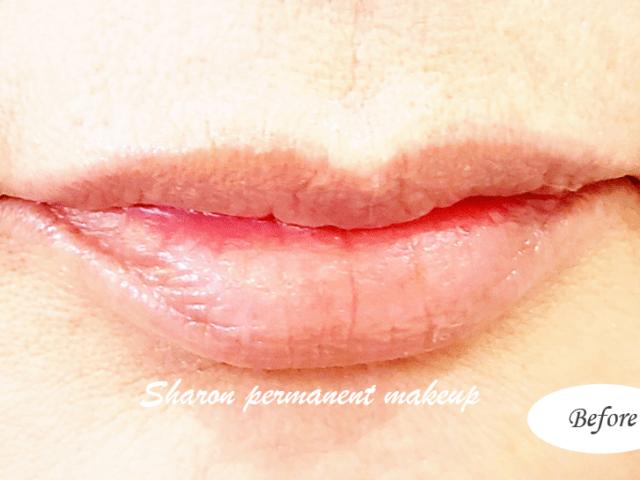 lip 2b