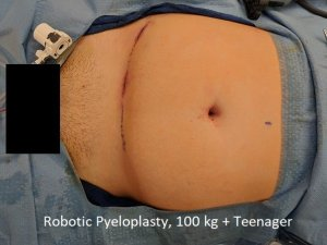 Robotic pyeloplasty obese teenager