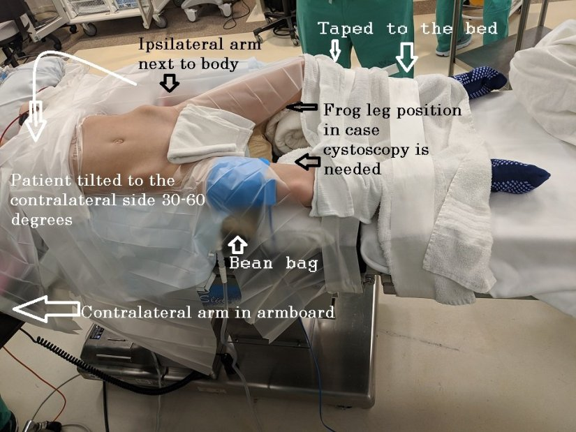 Robotic Pyeloplasty positioning
