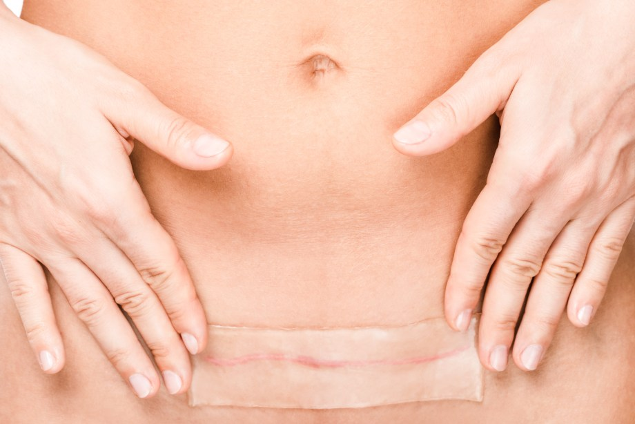 The Untapped Strategy You Need To Stop Your C-Section Scar ...