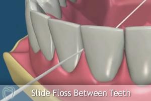 Slide floss between teeth