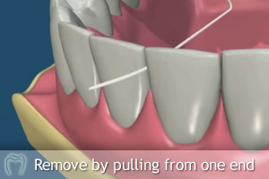 Remove floss from one end