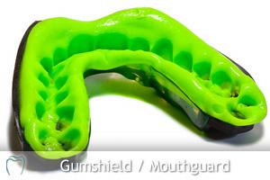 Gum shields