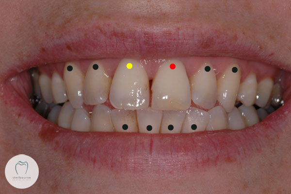 Teeth for crowns