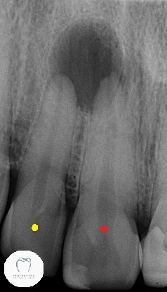X-ray of teeth that need dental crowns