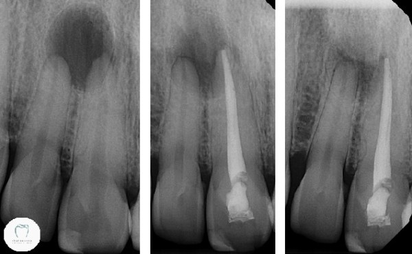 X-ray series showing successful root canal