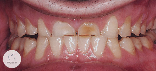 Teeth wear from grinding
