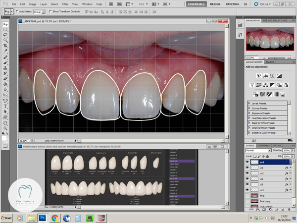 Digital Smile Design for cosmetic bonding case