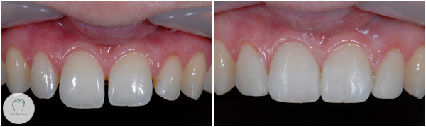 Improving appearance using dental bonding