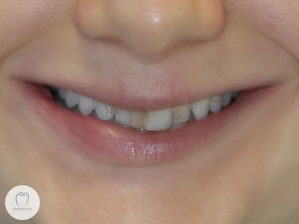 Pre-operative view of patient's smile