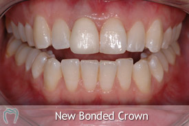 Bonded Crown