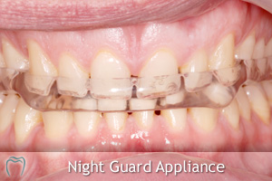 Night Guard Appliance
