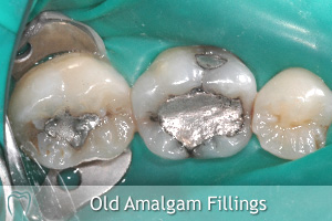 Old Amalgam Fillings
