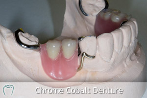 Chrome Cobalt Denture