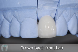 Crown back from lab