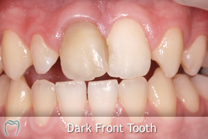 A Dark Front Tooth