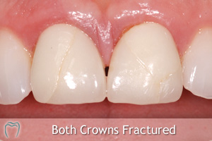 Fractured Crowns