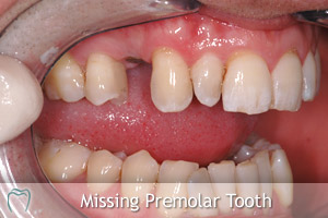 Missing Premolar Tooth