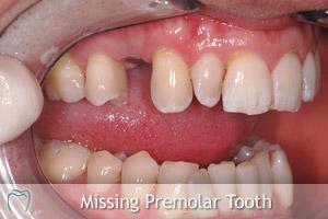 Missing Premolar Tooth