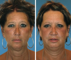 20-year-smoking-difference-smoker-on-left