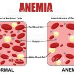 Anemia – Simptomat dhe Shkaqet