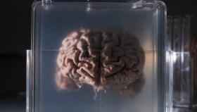 Ölümden sonra beyin canlı kalabilir mi?