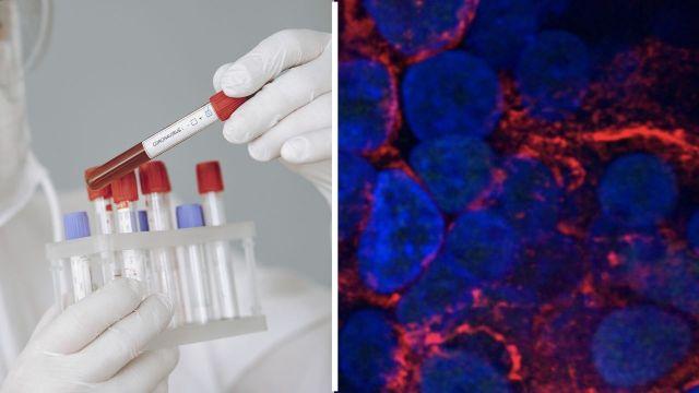 koronavirüs akciğer tahribatı