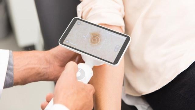 Google'dan cilt hastalıklarına yapay zeka çözümü!